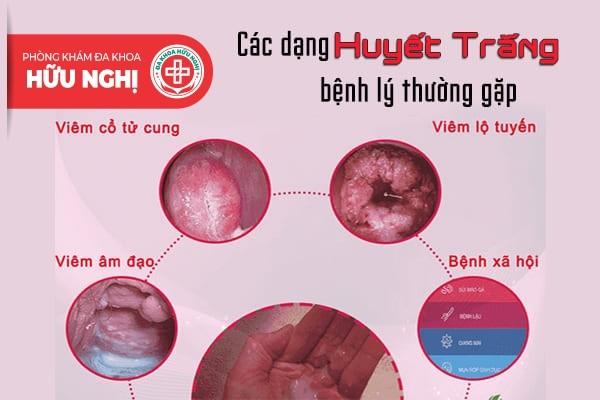Nhận biết các dạng huyết trắng bệnh lý thường gặp