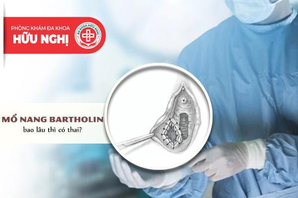 Mổ nang bartholin bao lâu thì có thai?