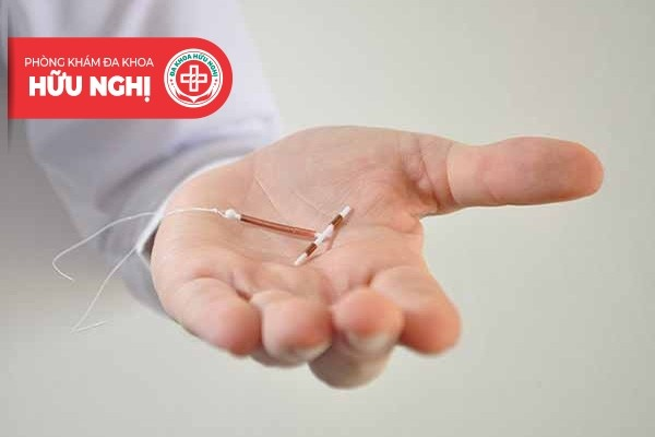 Mô phỏng quy trình đặt vòng tránh thai ở phụ nữ