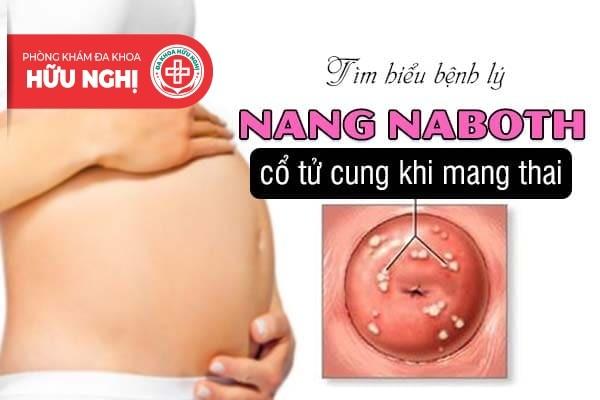 Tìm hiểu bệnh lý nang naboth cổ tử cung khi mang thai