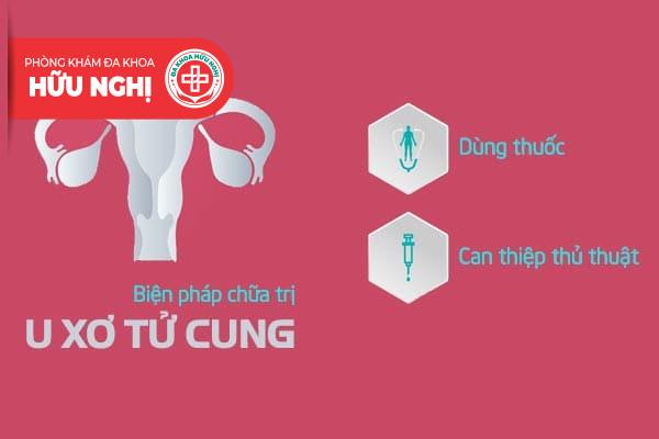 Các biện pháp chữa trị u xơ tử cung hiện nay