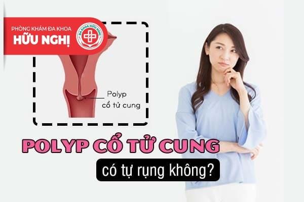 Polyp cổ tử cung có tự rụng không?