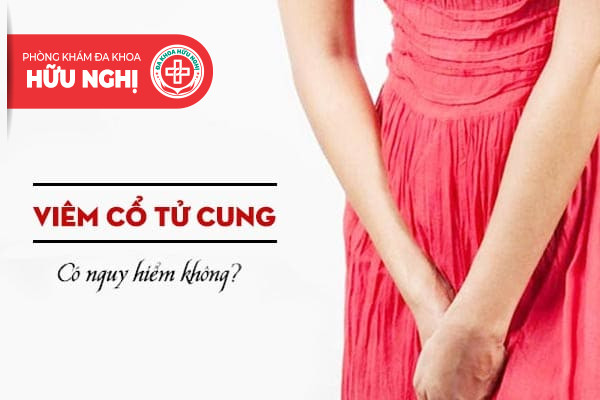 [Giải đáp] Liệu rằng viêm cổ tử cung có nguy hiểm không?