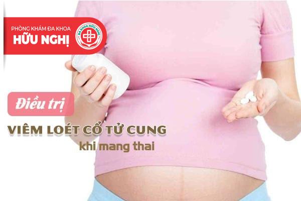 Điều trị viêm loét cổ tử cung khi mang thai