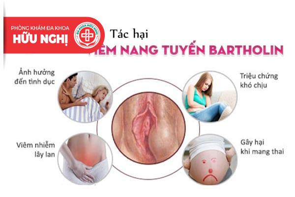 Những tác hại khôn lường khi viêm nang tuyến Bartholin