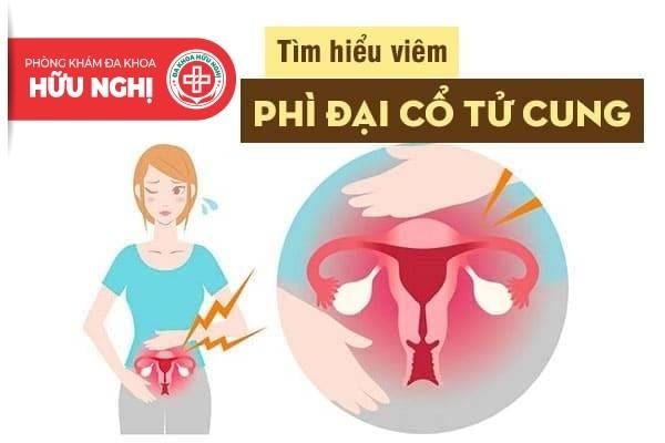 Viêm phụ khoa vì phì đại cổ tử cung