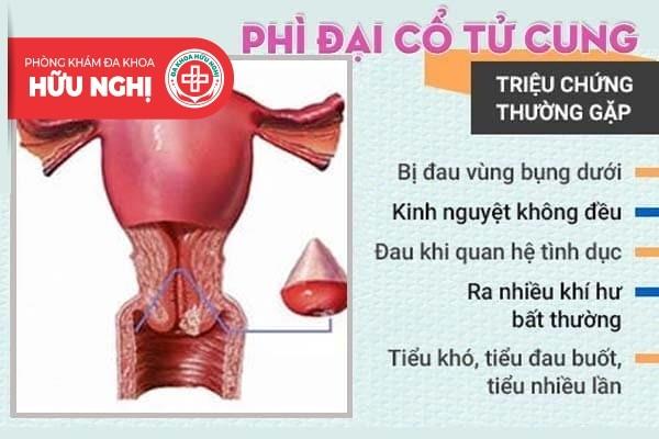 Nhận biết sớm các biểu hiện phì đại cổ tử cung