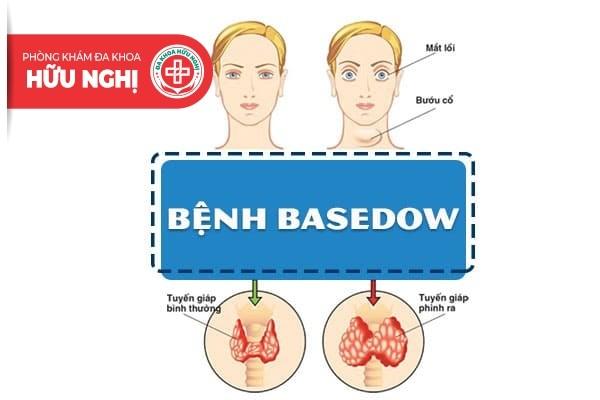 Bệnh Basedow là gì? Điều trị như thế nào?