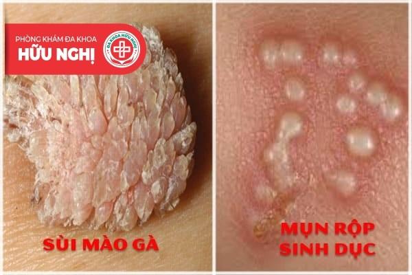 Bị nổi mụn cứng ở vùng lông mu là bị gì?