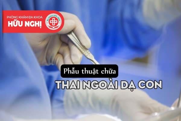 Phẫu thuật mổ mở điều trị thai ngoài tử cung