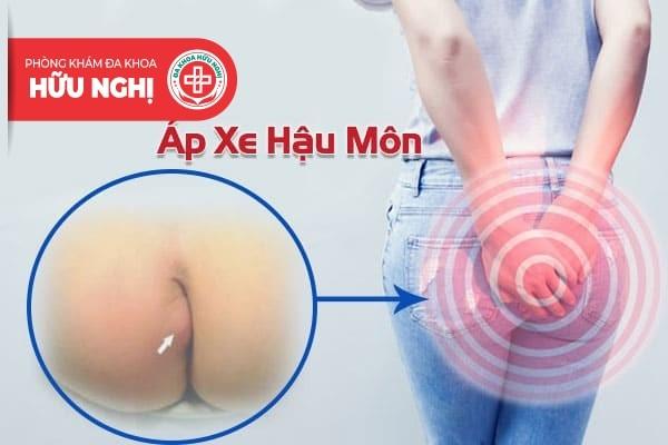 Địa chỉ chữa trị áp xe hậu môn ở Quảng Nam tốt nhất