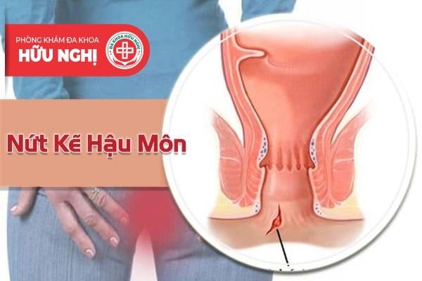 Địa chỉ chữa trị nứt kẽ hậu môn ở Quảng Nam tốt nhất