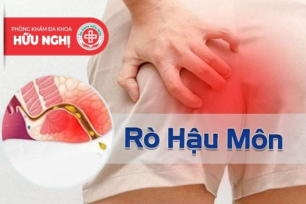 Địa chỉ chữa trị rò hậu môn ở Quảng Nam tốt nhất