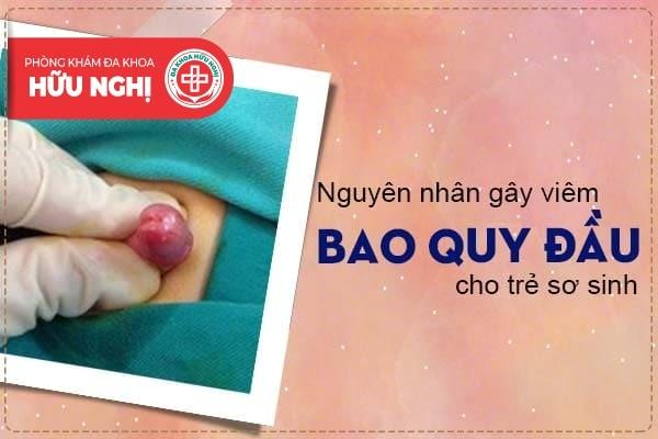 Nguyên nhân gây bệnh viêm bao quy đầu cho bé