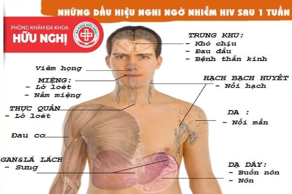 Những dấu hiệu nghi ngờ nhiễm HIV sau 1 tuần
