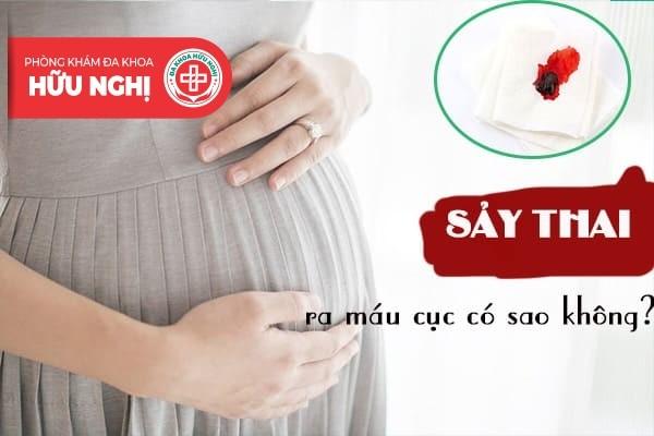 Sảy thai ra máu cục có sao không?
