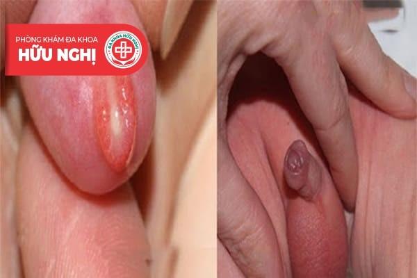 Hình ảnh thực tế về tình trạng viêm bao quy đầu ở trẻ em