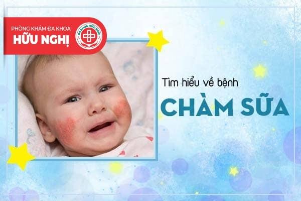 Điểm qua các thông tin về tình trạng chàm sữa ở bé