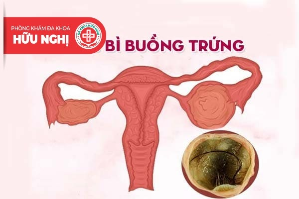 Điểm qua các thông tin về tình trạng u bì buồng trứng